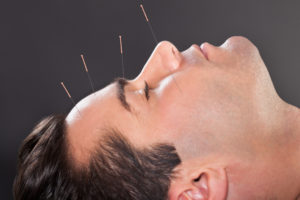 Close-up of man receiving acupuncture therapy, call our office for Schererville Acupuncture Treatments